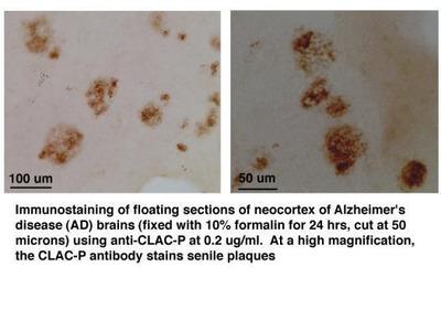 Anti-CLACP antibody