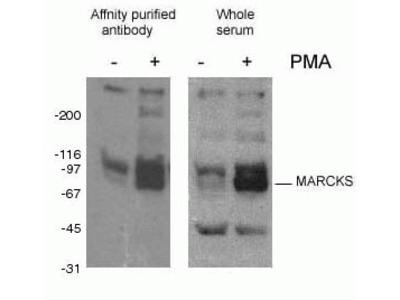 phospho-Marcks antibody