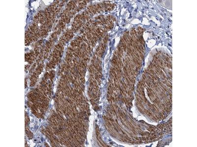 Anti-ESYT3 Antibody