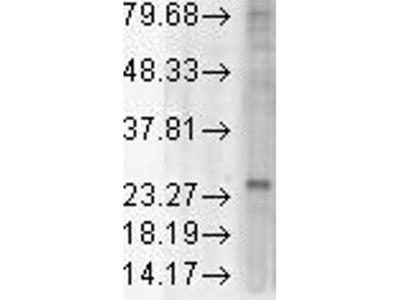 anti-KDEL Receptor (KDELR) antibody