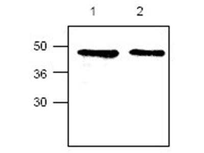 Anti-CYR61 antibody