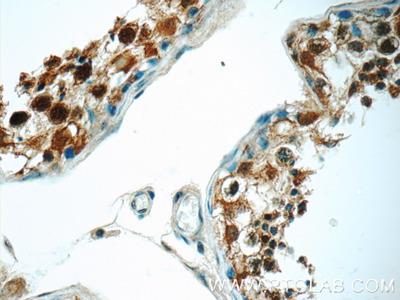 PPP2R4 antibody - KD/KO Validated