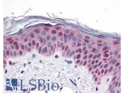 CCDC47 Antibody
