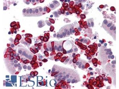 CHORDC1 / CHP1 Antibody