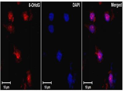 anti-DNA Damage Antibody