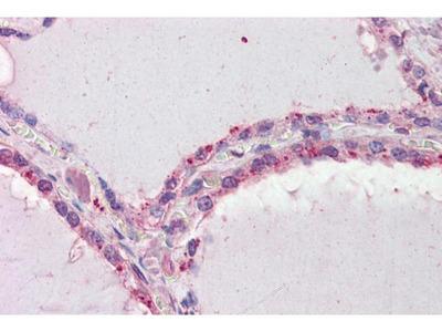 anti-DAPK2 antibody