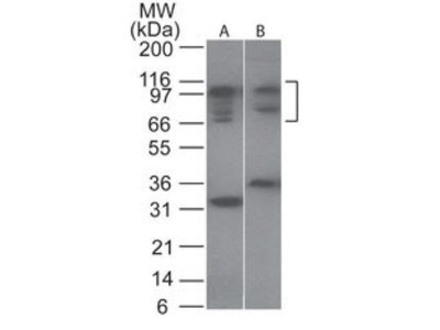 Anti-NFAT2 antibody