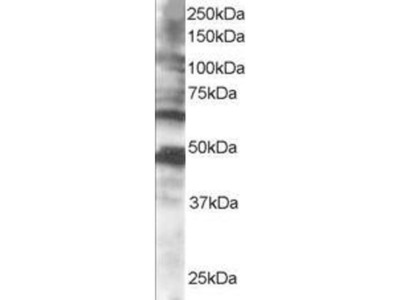 anti-Cytoplasmic Polyadenylation Element Binding Protein 1 (CPEB1) (C-Term) antibody