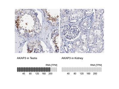 Anti-AKAP3 Antibody