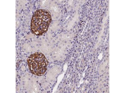 Anti-KLHL35 Antibody