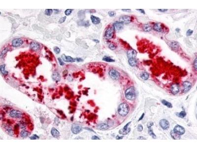 ERR gamma /NR3B3 Antibody