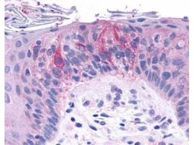 TAS1R2 Antibody