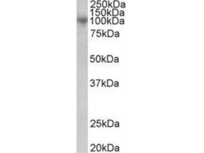ADAM8 Antibody