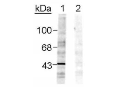 EphB1 [p Tyr298] Antibody