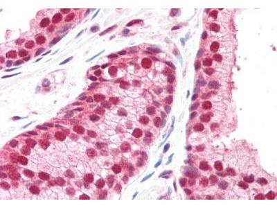 CSN1 Antibody
