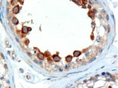 Goat Polyclonal ALMS1 Antibody