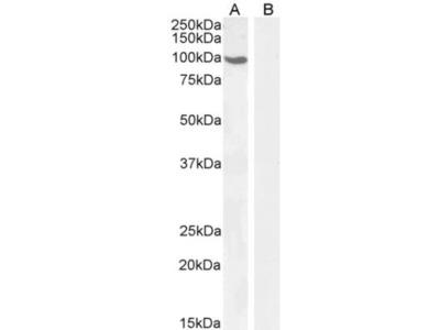 Goat Polyclonal Androgen R / NR3C4 / AR Antibody