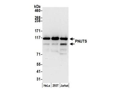 PNUTS /PPP1R10 Antibody
