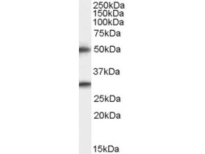 Spinesin Antibody