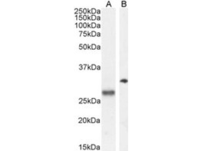 Goat Polyclonal POMC Antibody