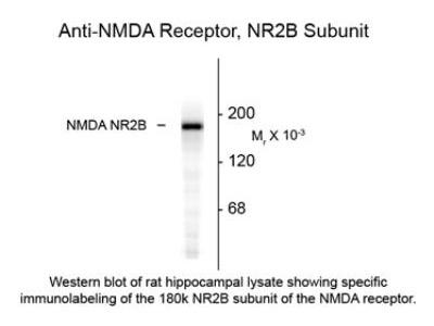 Rabbit Polyclonal NMDAR2B Antibody