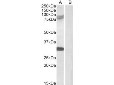 TRIM2 Antibody