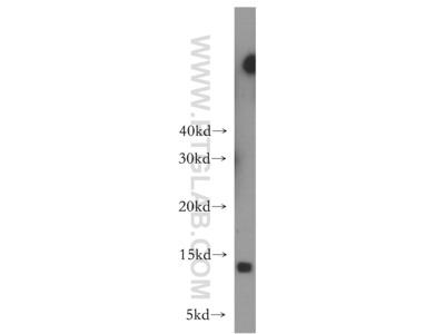 LSM10 antibody