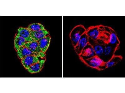 Mouse Monoclonal CFTR Antibody