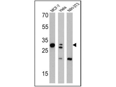 Mouse Monoclonal Galectin-3 Antibody