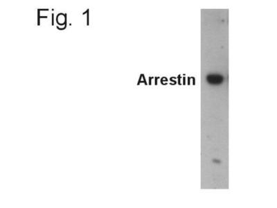 beta-Arrestin 2 Antibody