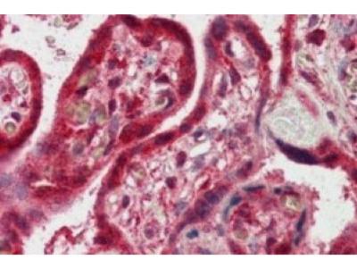 FAPP2 Antibody