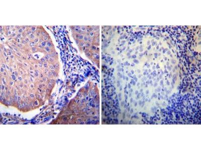 Glucocorticoid Receptor alpha Antibody