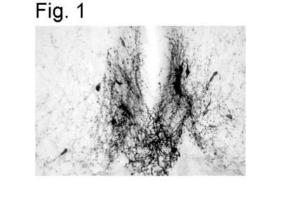 Rabbit Polyclonal GnRH Antibody