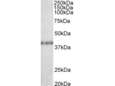 SUV39H2 Antibody
