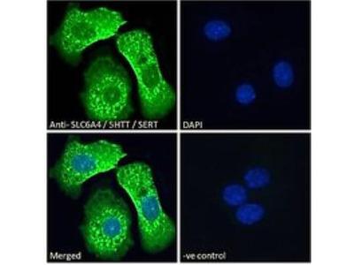 SLC6A4 / 5-HTTLPR / Serotonin transporter Antibody