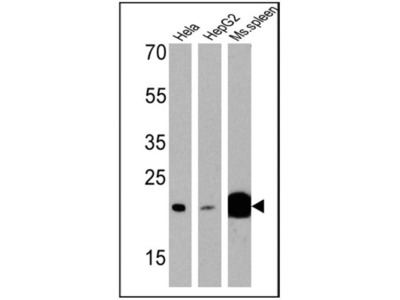 p23 /PTGES3 Antibody (JJ3)