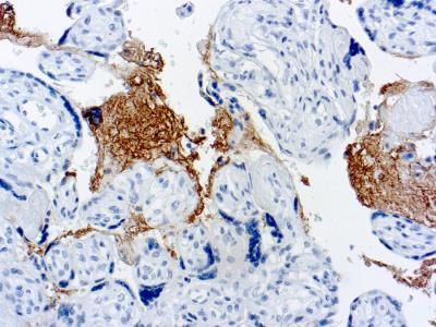Thrombospondin-1 Antibody (A6.1)