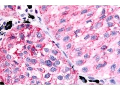 Rabbit Polyclonal PTGER1 Antibody