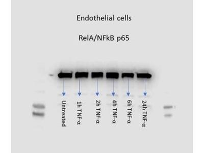 RelA /NFkB p65 Antibody