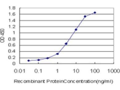 KMT2B Antibody (1F6)