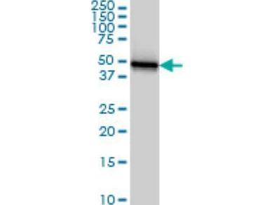 Cytokeratin 18 Antibody (2F8)