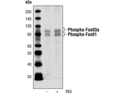 Detection of Phospho-FoxO1 (Thr24) and FoxO3a (Thr32)