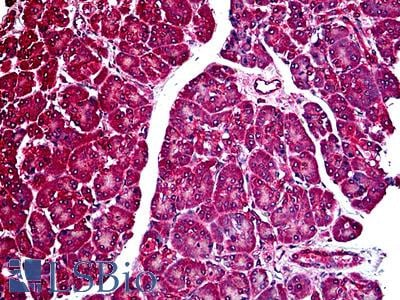 TNFRSF10B / Killer / DR5 Antibody