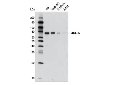 AKAP5 (D28G3) Rabbit mAb