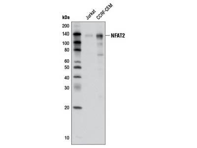 NFAT2 (D15F1) Rabbit mAb