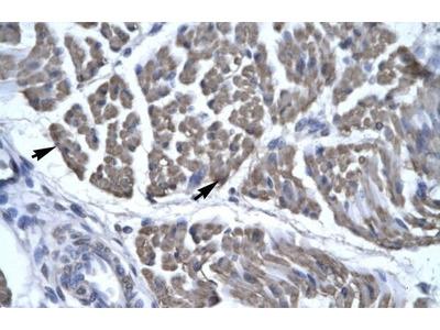 EYA3 Polyclonal Antibody