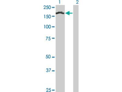 Treacher Collins syndrome protein Antibody (8H3)