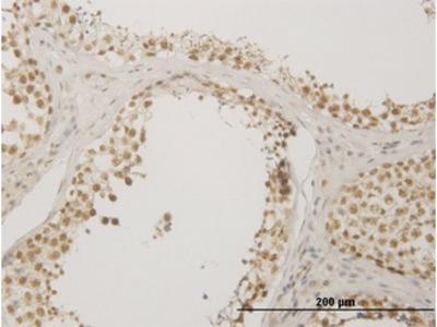 NUDT21 Monoclonal Antibody
