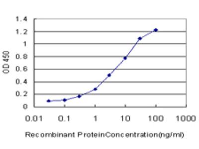 SALL2 Monoclonal Antibody