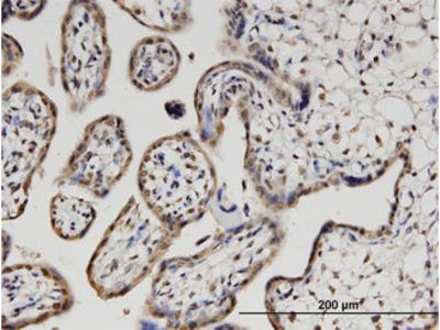 PLEKHO1 / CKIP-1 Monoclonal Antibody